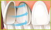 تبييض الاسنان(ملف كامل) Veneers.jpg